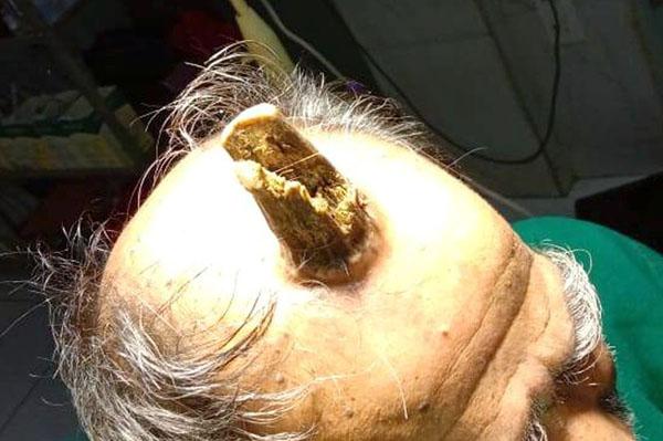 """印度一男子头上长出10厘米""""魔王角""""手术后切除"""